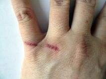 人的胳膊以从烧伤的伤痕在皮肤 库存图片