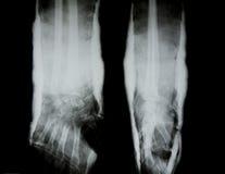 人的胳膊X-射线  免版税库存图片