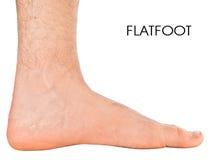 人的脚。扁平足第二级。 免版税库存照片