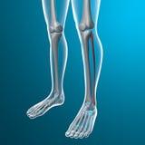 人的腿X-射线,腓骨的骨头 免版税库存图片