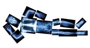 人的骨头睡觉(整体X-射线) 免版税库存照片