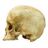 人的头骨破裂(边) (象蒙古人,亚洲) 免版税库存照片