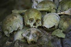 人的头骨&骨头 免版税库存照片