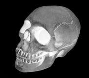 人的头骨x光芒图象 图库摄影