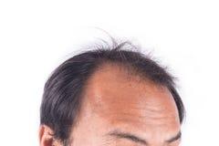 年轻人秃头  免版税库存照片
