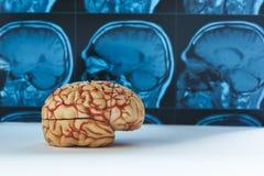 人脑模型和MRI背景 免版税库存图片