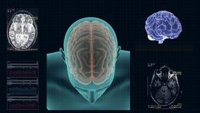 人脑的MRI在轴向投射的 皇族释放例证