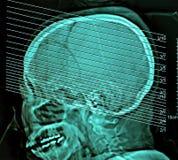 人脑计算机化的影片X-射线X线体层照相术, CT扫描 免版税库存照片