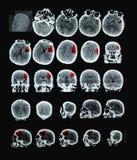 人脑CT 免版税库存照片