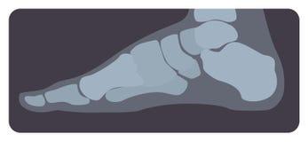 人脚或肢体侧向射线照相  X射线辐射图片或跗基节骨头和脚趾,侧视图的幅射线照相的图象 皇族释放例证