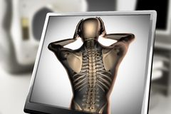 人骨头造影扫描图象 免版税库存图片