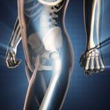 人骨头造影扫描图象 免版税库存照片