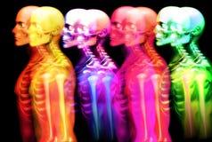 人骨头3 图库摄影