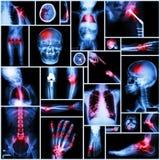 人,矫形操作和多种疾病(肩膀脱臼,冲程,破裂,痛风, Rh的X-射线多个部门的汇集 库存图片