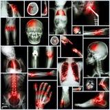 人,矫形操作和多种疾病(肩膀脱臼,冲程,破裂,痛风, Rh的X-射线多个部门的汇集 免版税库存图片