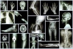 人&矫形手术&多种疾病(骨关节炎膝盖,椎关节强硬,冲程,破裂b的汇集X-射线多个部门 库存照片