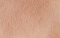 从桃红色健康人的皮肤特写镜头混乱的被构造的背景,报道用毛孔和皱痕爬行 免版税库存照片