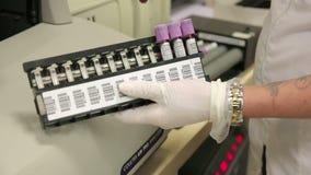 伊兹密尔,土耳其- 2013年1月:测试血样 股票视频