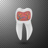传染媒介现实牙 3D有内在部分的牙成脉络在透明覆盖物背景的模板 库存照片