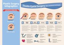 传染媒介与双重眼皮手术的被说明的集合 非incisional技术 皇族释放例证