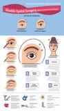 传染媒介与双重眼皮手术的被说明的集合 非incisional技术 库存例证
