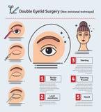 传染媒介与双重眼皮手术的被说明的集合 非incisional技术 向量例证