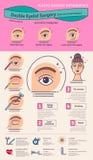 传染媒介与双重眼皮手术的被说明的集合 库存例证