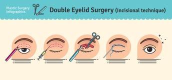 传染媒介与双重眼皮手术的被说明的集合 皇族释放例证