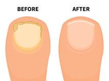 传染媒介在霉菌疾病前后的脚趾钉子 免版税库存照片