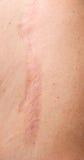 伤痕皮肤 图库摄影