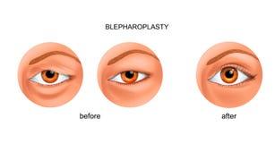 伸出的眼皮和亚洲眼皮的Blepharoplasty 向量例证