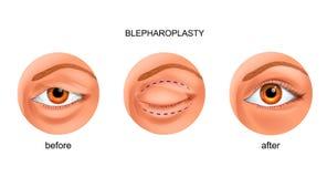 伸出的眼皮的Blepharoplasty 库存例证