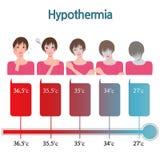 低体温症 库存例证
