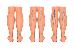 更低的肢的静脉曲张 免版税图库摄影