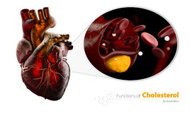 作为例子的心脏,封锁的血管,与胆固醇积累,例证的动脉隔绝了白色 免版税库存图片