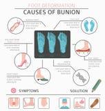 作为infographic医疗的desease的脚变形 bunio的原因 向量例证