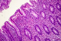 使化脓肠痈,轻的微写器 库存照片