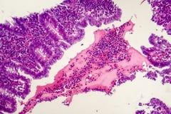 使化脓肠痈,轻的微写器 免版税库存照片