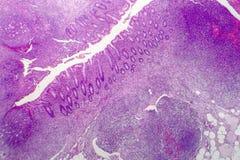 使化脓肠痈,轻的微写器 库存图片
