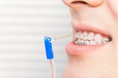 使用牙齿之间刷子的人为正牙箍 图库摄影