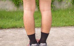供以人员腿的腿膝向外曲形状,选择聚焦 免版税图库摄影
