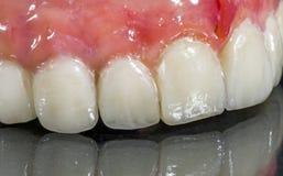假牙,牙齿桥梁 库存图片