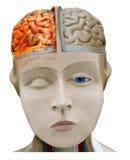 偏头痛,头疼 在火火焰的灼烧的脑子  免版税库存图片
