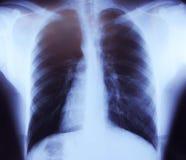 胸口x健康人的光芒图象 库存图片