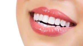 健康微笑。漂白的牙 库存照片
