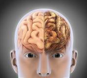 健康脑子和不健康的脑子 皇族释放例证