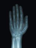 儿童手X-射线Unclosed脑上体 库存图片
