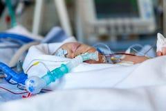 婴儿,加护病房的孩子在心脏手术以后 免版税库存照片