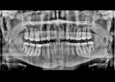 充分的嘴牙齿X-射线图片 库存照片