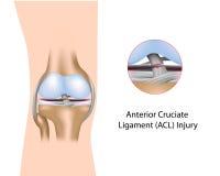 先前十字形韧带伤害 向量例证
